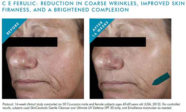 CE-FERULIC-REDUCTION-OF-WRINKLES
