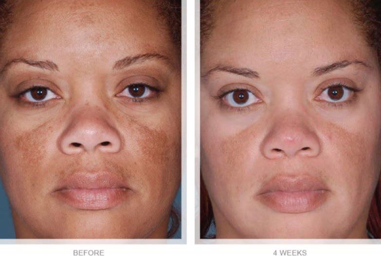 OBAGI-NUDERM-CLEAR-FX-&-NUDERM-BLEND-FX-BEFORE-AND-AFTER