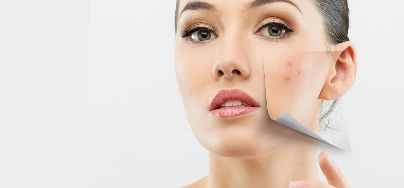 The solutions to pimples acne and breakouts skinmiles for La cabine skincare