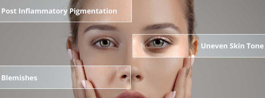 skinceuticals-blemish-age-post-image