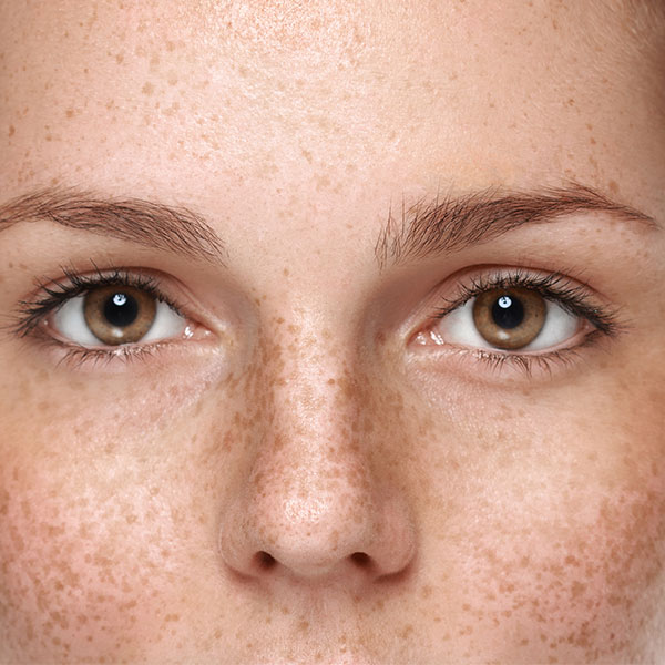 HOW-ARBUTIN-HELPS-CLEAR-HYPERPIGMENTATION-FEATURE-IMAGE