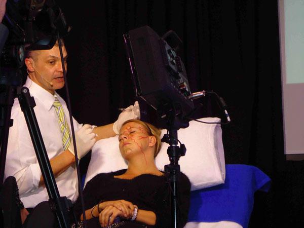 Dr Alek Procedure